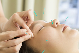 Female acupuncturist to refer to acupuncture to face